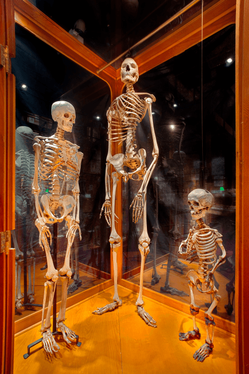 Compare human skeleton sizes at the Mutter Museum - average, giant and dwarf (Photo from MutterMuseum.org)